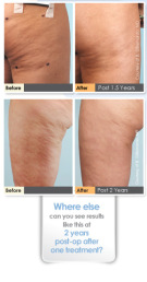 cellulite-laser-acara-partners