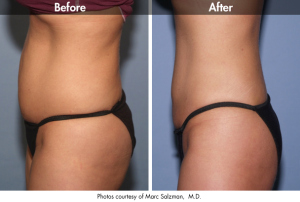 Cosmetic Surgery Times: Acara Partners' Laser Lipo Event Program