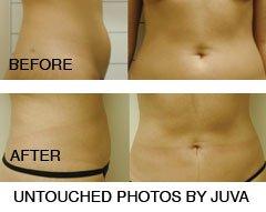 Smartlipo Pioneers to Hold Smartlipo & Liposuction Training in NYC